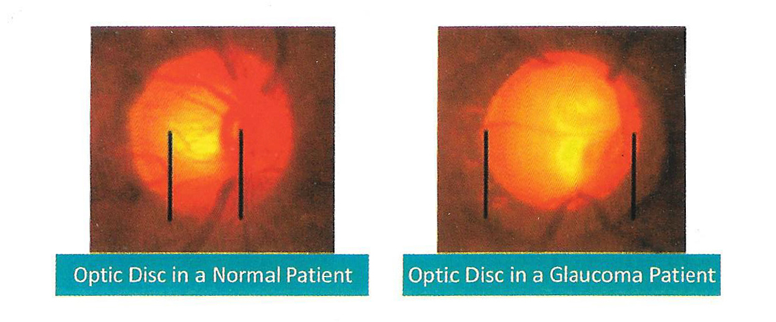 Optic Disc in a Normal Patient and optic Disc in a Glaucoma Patient