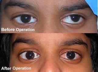 Treatment Center For Pediatric Ophthalmology And Squint Services