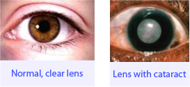 Normal clear lens