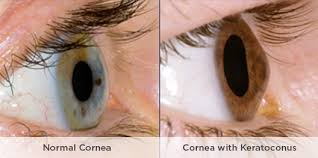 normal cornea and cornea with keratoconus