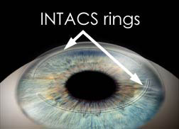 Intacs Surgery for Keratoconus