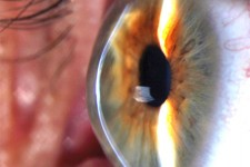 keratoconus-treatment