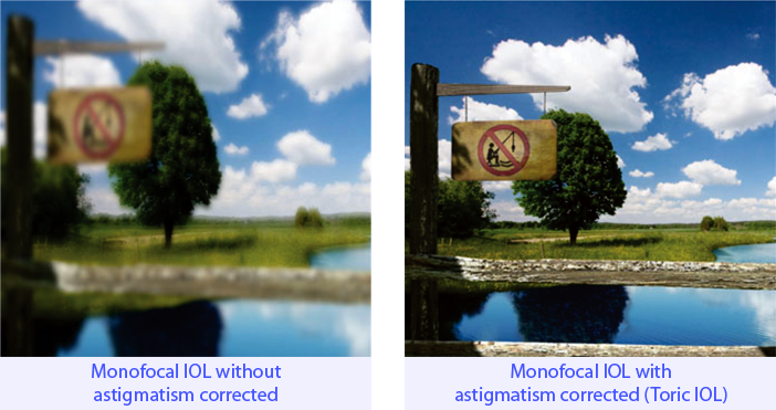 Monofocal IOL with astigmatism corrected (Toric IOL)